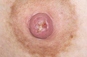 thrush on nipple Credit DR P. MARAZZI / SCIENCE PHOTO LIBRARY